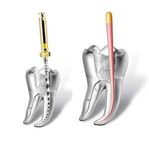 Endodonție. Obturație canal dentar