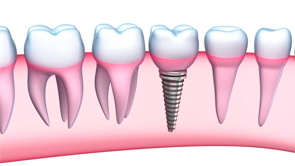 Despre implantul dentar