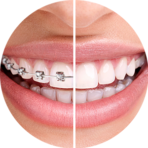 Ortodonție, aparate dentare