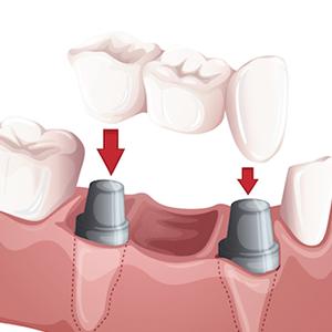 Protetică dentară fixă